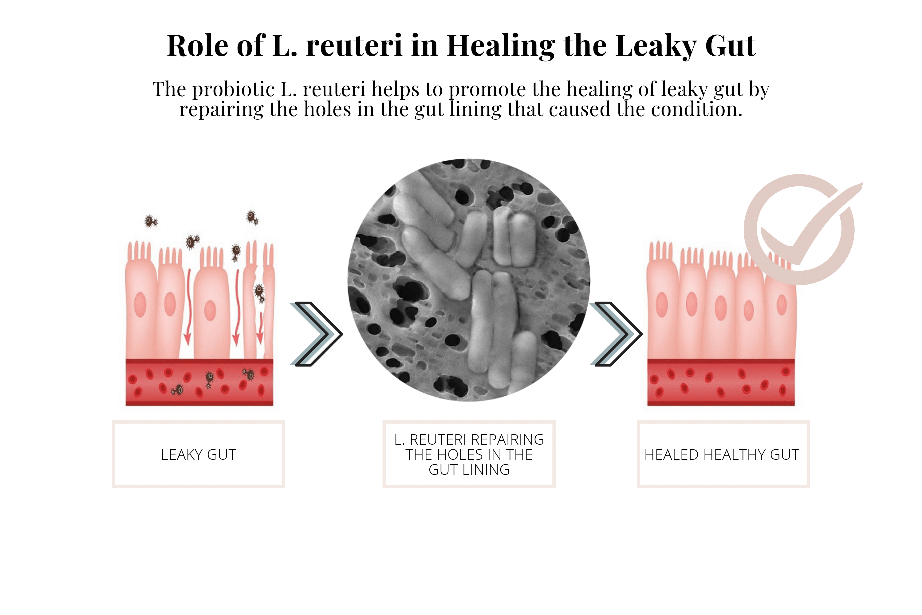 The Vital Role Lactobacillus Reuteri Plays in Your (and your babies) Health